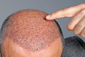 هل عمليات زراعة الشعر مجدية؟