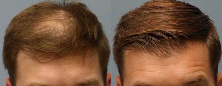 تعرّف على تكلفة عملية زراعة الشعر في تركيا
